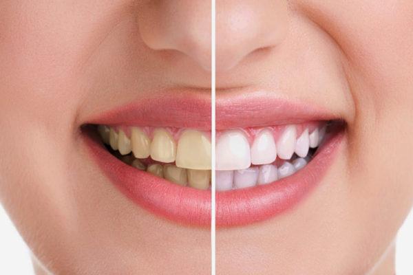 5 Alimenti Che Macchiano I Denti