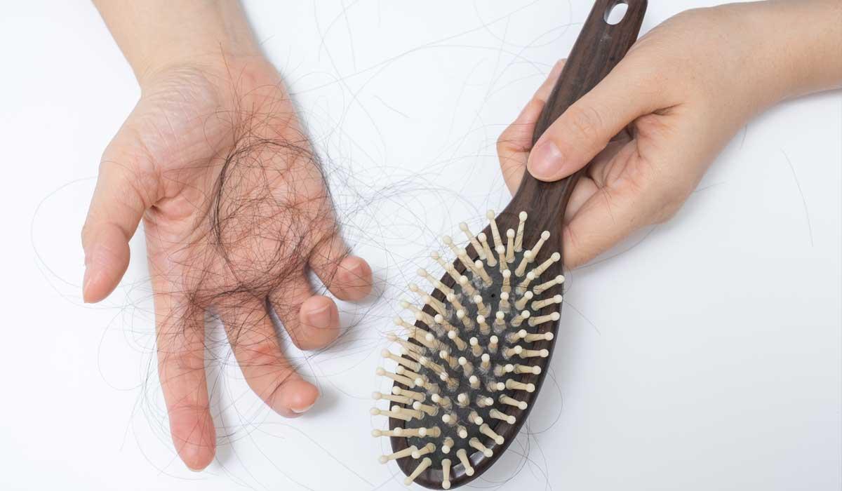 Alopecia Cause