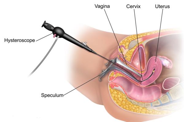 Isteroscopia Fa Male