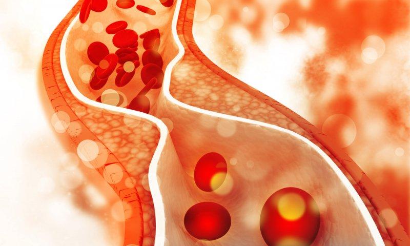 Colesterolo Alto: Sintomi, Cause, Fattori Di Rischio E Complicazioni