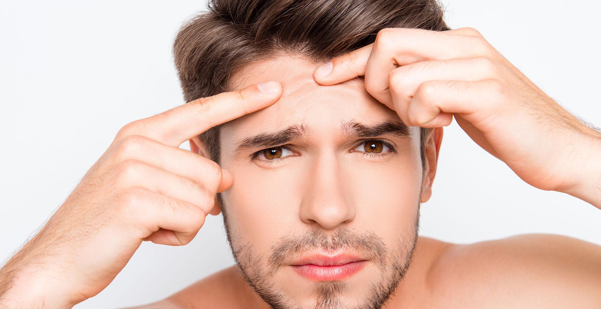 Cosa Causa L'acne? Ecco Alcuni Rimedi Casalinghi