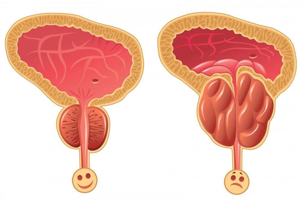 segni fisici di ingrossamento della prostata