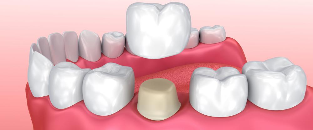 Capsule Dentali Quando Sono Necessarie