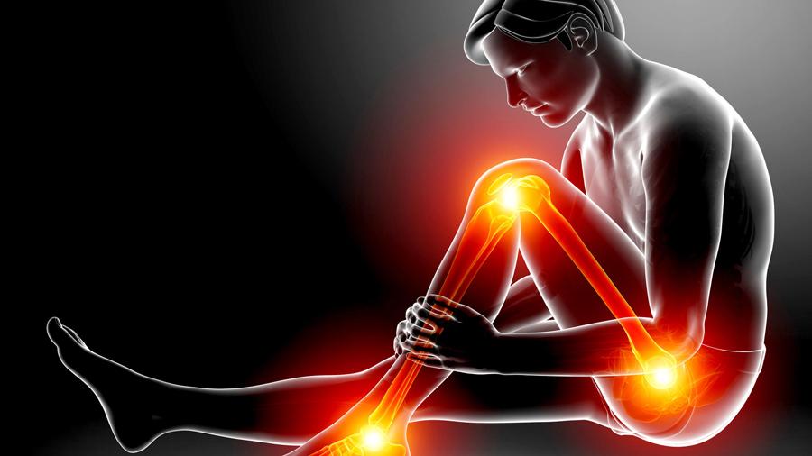 Sciatica Cause Sintomi Rimedi