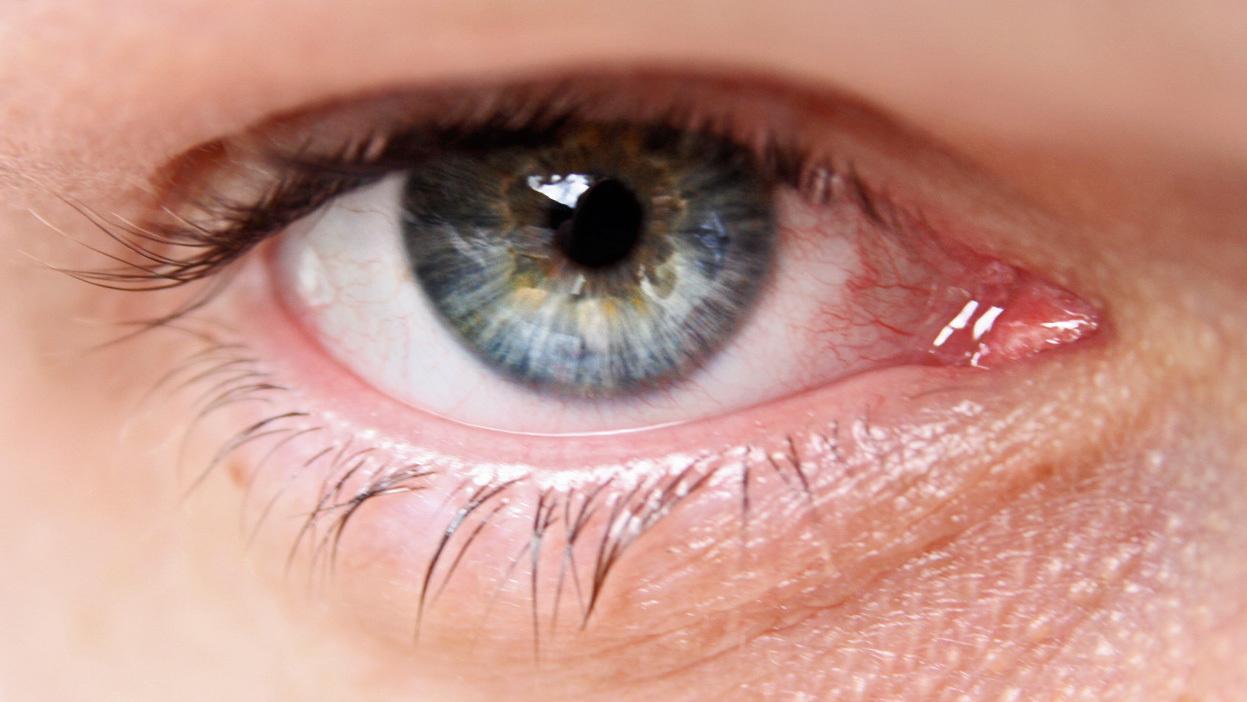 Glaucoma Sintomi Cause