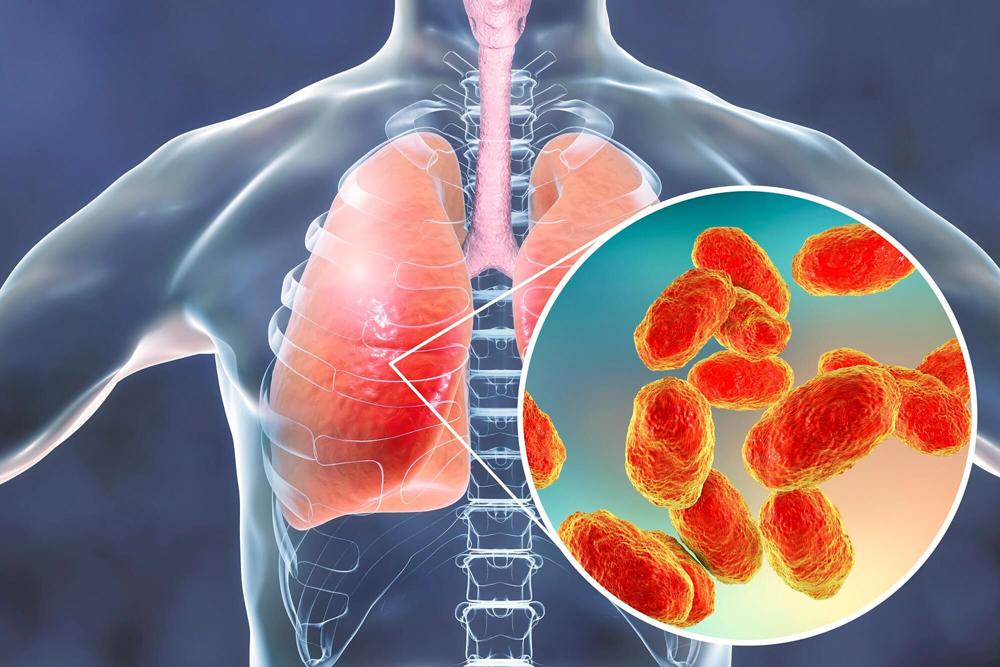 chirurgia dimagrante e polmonite
