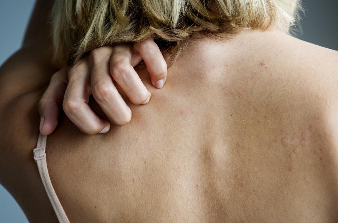 Sintomi Cause Lichen Planus