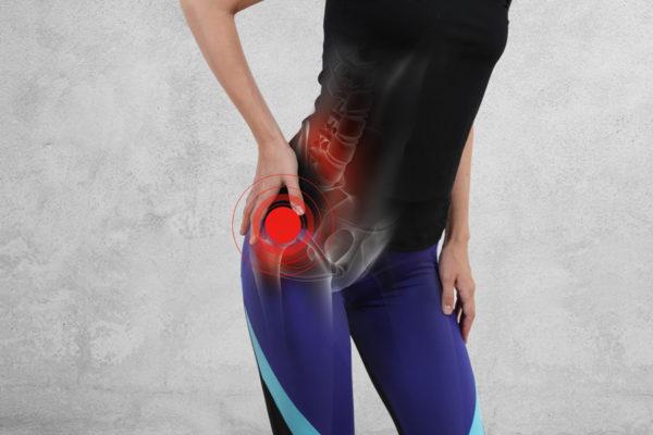 Borsite Trocanterica Sintomi Cause