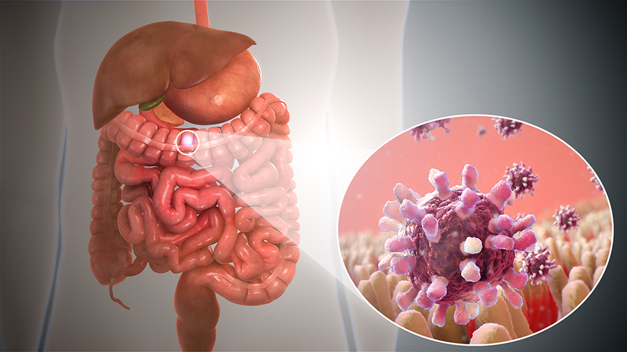 Gastroenterite: Sintomi E Cause