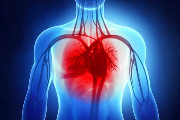 Insufficienza Cardiaca Sintomi