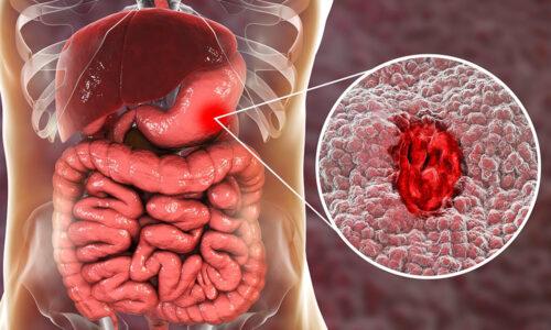 Ulcera Peptica Sintomi Cause