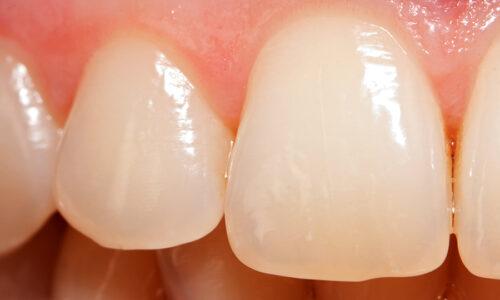 Danni Allo Smalto Dei Denti Cause