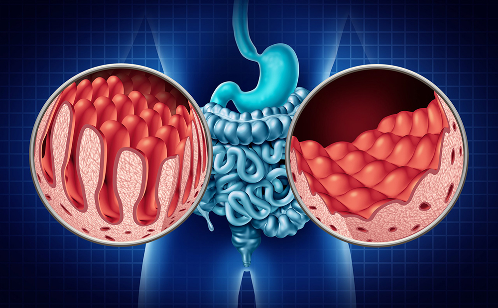 Sintomi Celiachia
