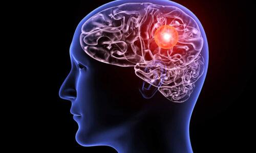 Sintomi Aneurisma Cerebrale