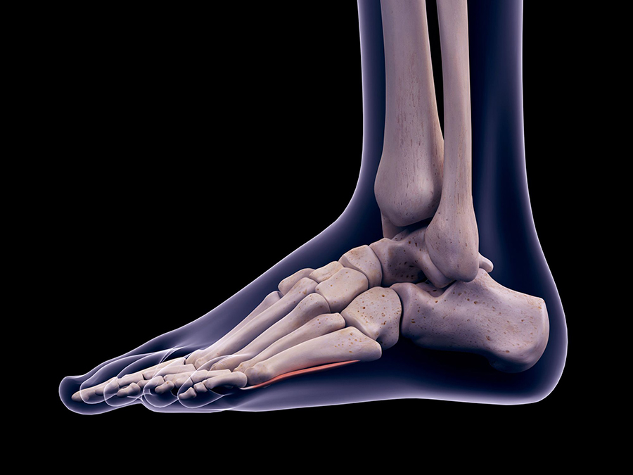 Caviglie Scrocchiano Cause